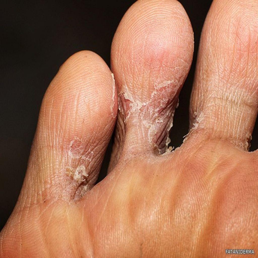 سعفة القدم (قدم الرياضي)
